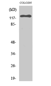 Fig. Western Blot analysis of various cells using EphB6 Polyclonal Antibody.