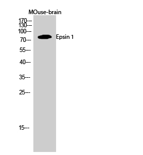 Fig.2. Western Blot analysis of MOuse-brain cells using Epsin 1 Polyclonal Antibody diluted at 1:1000.