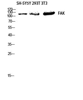 Fig.2. Western blot analysis of HELA 3T3 lysis using FAK antibody. Antibody was diluted at 1:1000.
