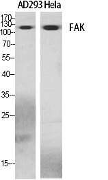 Fig. Western Blot analysis of various cells using FAK Polyclonal Antibody diluted at 1:500.