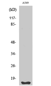 Fig. Western Blot analysis of various cells using Fhit Polyclonal Antibody.