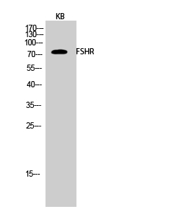 Fig.2. Western Blot analysis of KB cells using FSHR Polyclonal Antibody diluted at 1:1000.