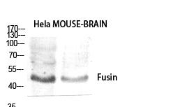 Fig.1. Western Blot analysis of various cells using Fusin Polyclonal Antibody diluted at 1:1000.
