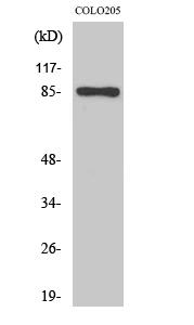 Fig.2. Western Blot analysis of COLO205 cells using Fyb Polyclonal Antibody.