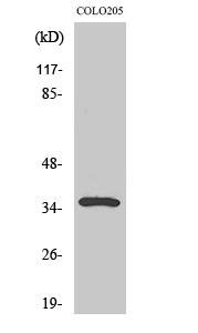 Fig. Western Blot analysis of various cells using Galectin-4 Polyclonal Antibody.