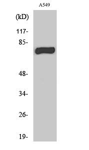 Fig. Western Blot analysis of various cells using MPP9 Polyclonal Antibody.