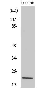 Fig. Western Blot analysis of various cells using NDUFB10 Polyclonal Antibody.