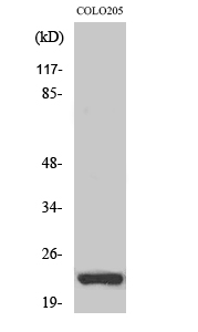 Fig. Western Blot analysis of various cells using NEEP21 Polyclonal Antibody diluted at 1:2000.