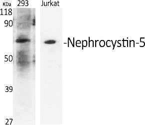 Fig.1. Western Blot analysis of various cells using Nephrocystin-5 Polyclonal Antibody diluted at 1:500.