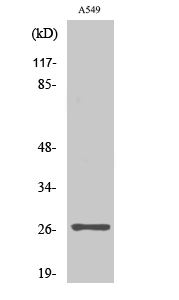 Fig. Western Blot analysis of various cells using NET-5 Polyclonal Antibody diluted at 1:2000.