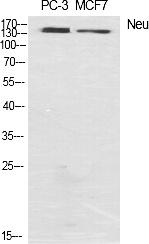 Fig.1. Western Blot analysis of various cells using Neu Polyclonal Antibody diluted at 1:1000.