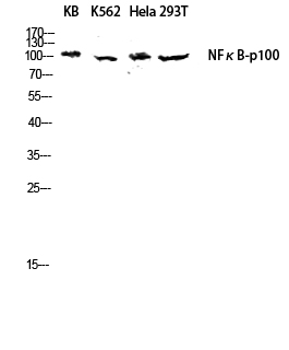 Fig.3. Western blot analysis of KB, K562,  hela and 293T lysates using NFκB-p100 antibody. Antibody was diluted at 1:1000.