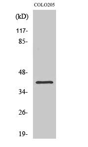 Fig. Western Blot analysis of various cells using NPM Polyclonal Antibody.