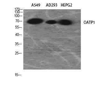 Fig.2. Western Blot analysis of A549, AD293, HepG2 using OATP1 Polyclonal Antibody. Antibody was diluted at 1:2000.