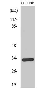 Fig. Western Blot analysis of various cells using Olfactory receptor 1B1 Polyclonal Antibody.