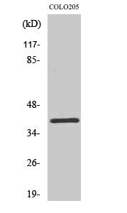 Fig. Western Blot analysis of various cells using Olfactory receptor 2L5 Polyclonal Antibody.