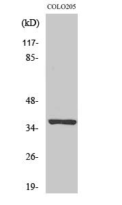Fig. Western Blot analysis of various cells using Olfactory receptor 52E5 Polyclonal Antibody.
