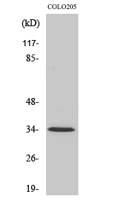Fig. Western Blot analysis of various cells using Olfactory receptor 5P3 Polyclonal Antibody.