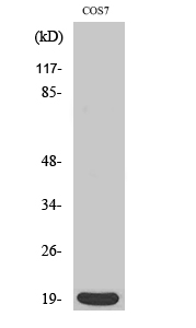 Fig. Western Blot analysis of various cells using Op18 Polyclonal Antibody diluted at 1:500.