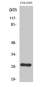 Fig. Western Blot analysis of various cells using OTUB2 Polyclonal Antibody diluted at 1:2000.