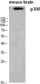 Fig. Western Blot analysis of various cells using p300 Polyclonal Antibody diluted at 1:500.