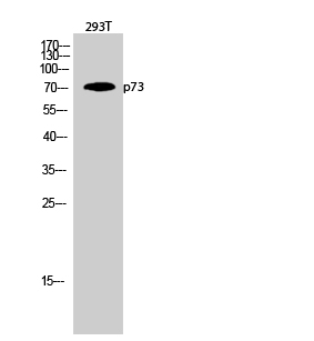 Fig.2. Western Blot analysis of 293T cells using p73 Polyclonal Antibody diluted at 1:2000.