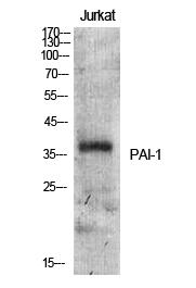 Fig.1. Western Blot analysis of various cells using PAI-1 Polyclonal Antibody.