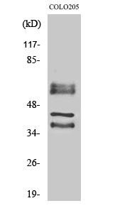 Fig. Western Blot analysis of various cells using Periphilin 1 Polyclonal Antibody.
