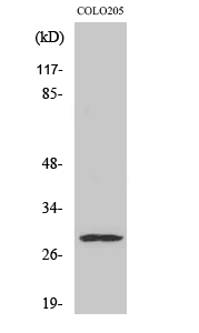 Fig. Western Blot analysis of various cells using Peroxin 11β Polyclonal Antibody diluted at 1:500.