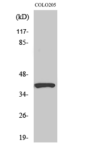 Fig. Western Blot analysis of various cells using PI-9 Polyclonal Antibody diluted at 1:1000.