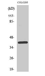 Fig.2. Western Blot analysis of COLO205 cells using PKAα/β/γ cat Polyclonal Antibody diluted at 1:1000.