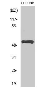 Fig. Western Blot analysis of various cells using PRP19 Polyclonal Antibody.