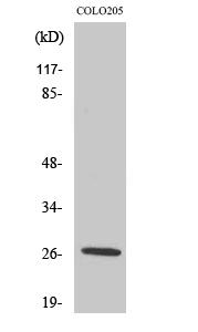 Fig. Western Blot analysis of various cells using PRSS33 Polyclonal Antibody.