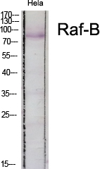 Fig. Western Blot analysis of various cells using Raf-B Polyclonal Antibody diluted at 1:500.
