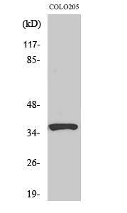 Fig. Western Blot analysis of various cells using RASSF4 Polyclonal Antibody.