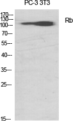 Fig.1. Western Blot analysis of various cells using Rb Polyclonal Antibody diluted at 1:1000.