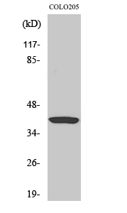 Fig.2. Western Blot analysis of hela cells using Ref-1 Polyclonal Antibody diluted at 1:2000.