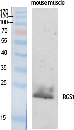 Fig. Western Blot analysis of various cells using RGS1 Polyclonal Antibody.