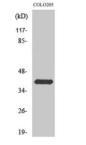 Fig. Western Blot analysis of various cells using Rhodopsin Polyclonal Antibody.