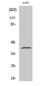 Fig. Western Blot analysis of various cells using Sarcoglycan-β Polyclonal Antibody.