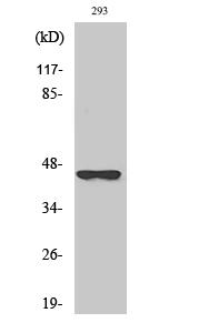Fig. Western Blot analysis of various cells using SCCA2 Polyclonal Antibody.