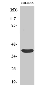 Fig. Western Blot analysis of various cells using Siah-2 Polyclonal Antibody.