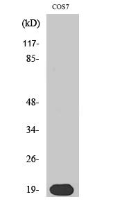 Fig. Western Blot analysis of various cells using Skp1 p19 Polyclonal Antibody.