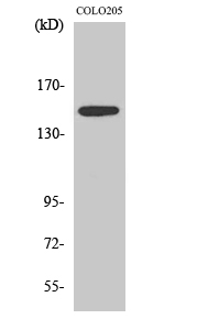 Fig. Western Blot analysis of various cells using SLK Polyclonal Antibody diluted at 1:1000.