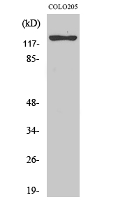 Fig.2. Western Blot analysis of COLO205 cells using ST5 Polyclonal Antibody.