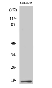 Fig. Western Blot analysis of various cells using TCEAL1 Polyclonal Antibody.
