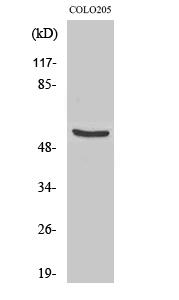 Fig. Western Blot analysis of various cells using TH Polyclonal Antibody.