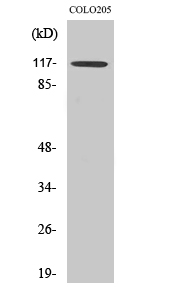 Fig.2. Western Blot analysis of COLO205 cells using TIF1α Polyclonal Antibody diluted at 1:1000. Secondary antibody (catalog#: A21020) was diluted at 1:20000.