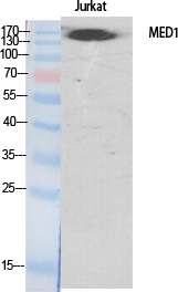 Fig. Western Blot analysis of various cells using TRAP220 Polyclonal Antibody diluted at 1:500. Secondary antibody (catalog#: A21020) was diluted at 1:20000.