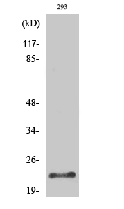 Fig. Western Blot analysis of various cells using Trypsin-1 Polyclonal Antibody diluted at 1:500. Secondary antibody (catalog#: A21020) was diluted at 1:20000.